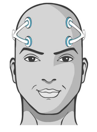 foc.us Headset